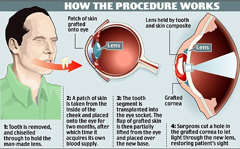 tooth-implant-diagram